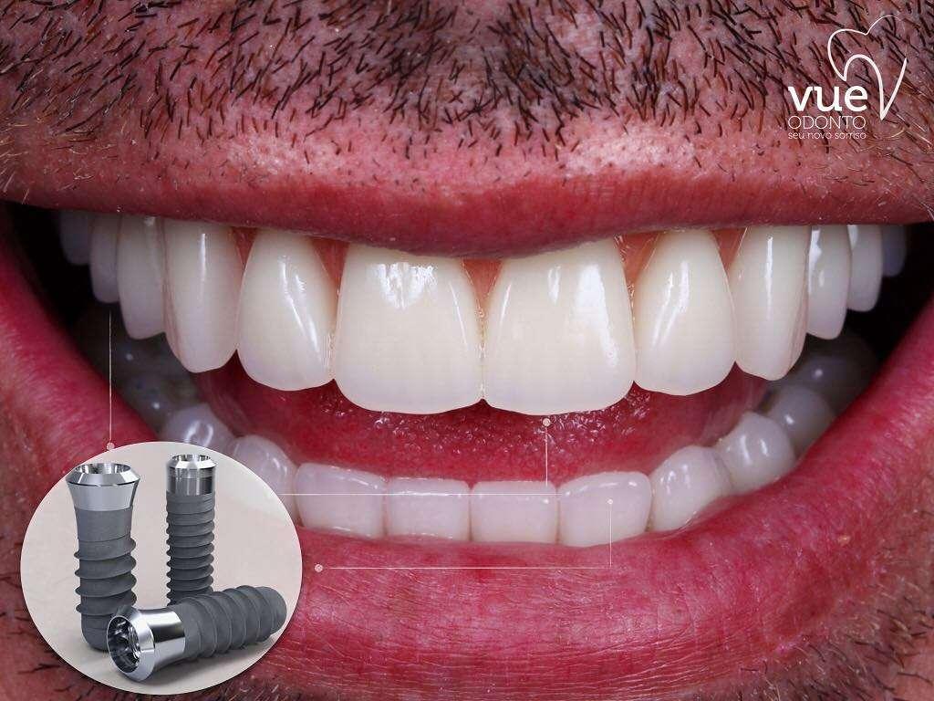 Implantes