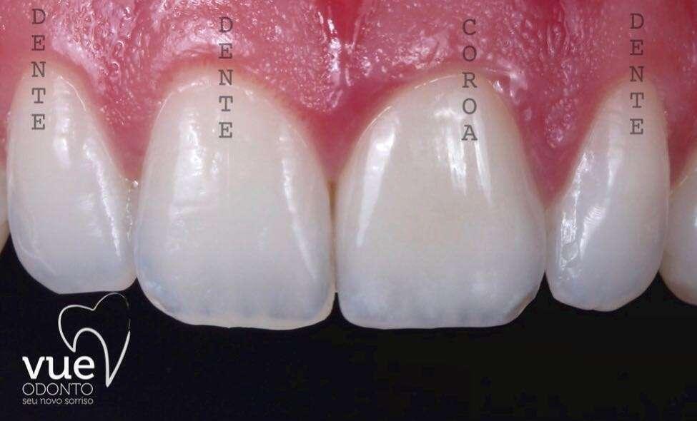 Coroa Dentária