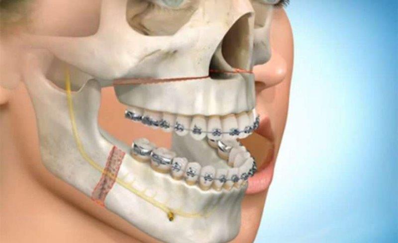 cirurgia odontologia maxilar