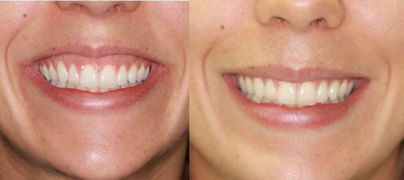dentista especializado em gengiva