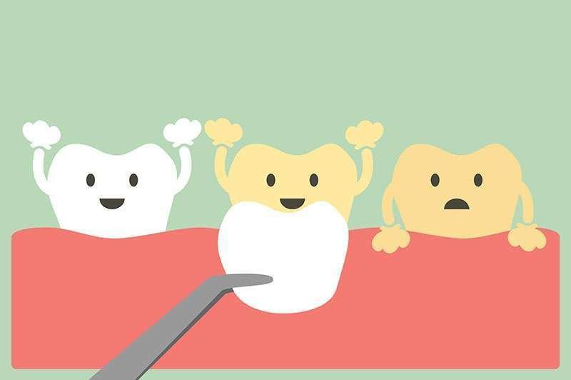 facetas de porcelana nos dentes da frente