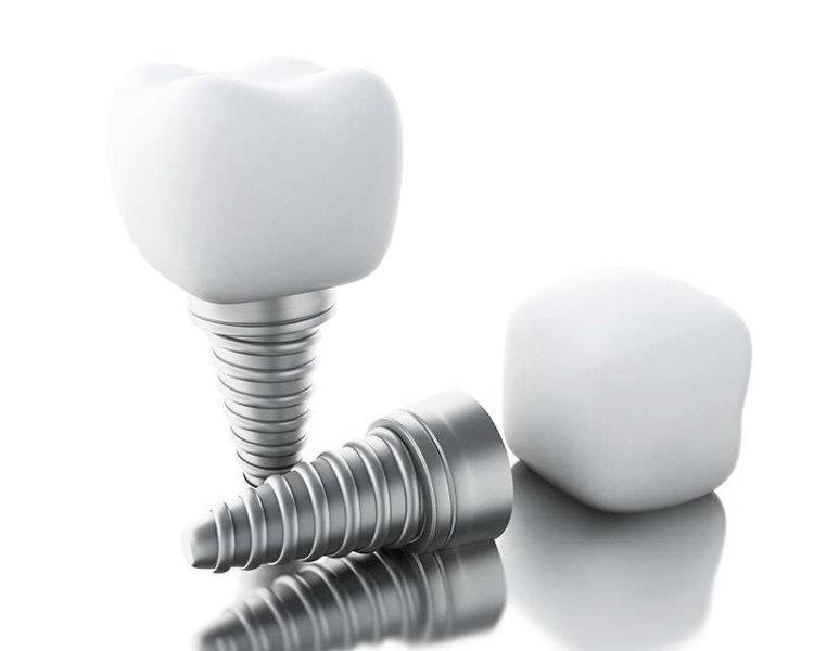 implante enxerto