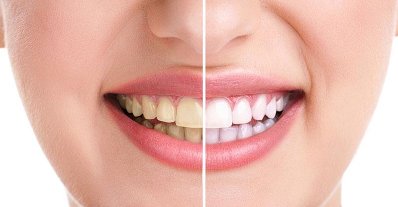 limpeza dos dentes tártaro