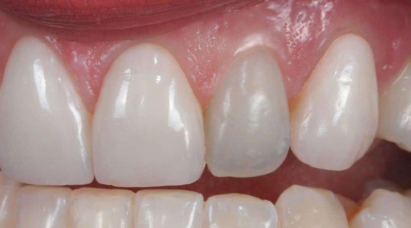 tratar canal dente