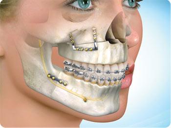 Cirurgia ortognática