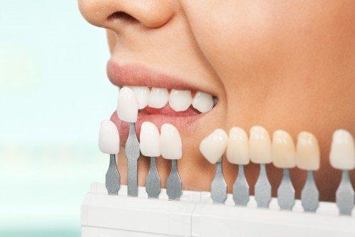 facetas de porcelana em dentes tortos