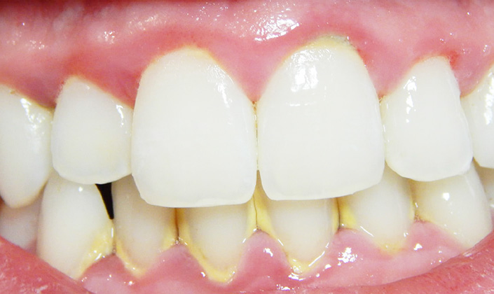 quanto custa para tirar tártaro dos dentes
